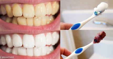 重拾燦笑的勇氣!9個「讓你的牙齒不再黃黃的」牙齒美白小撇步,照著做就能擁有完美笑容!