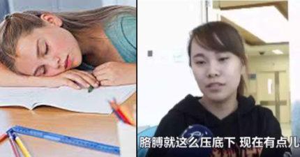 午休趴睡起床「手不舉」!28歲女驚:我感覺不到自己的手了