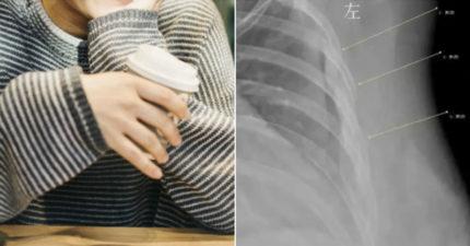 嫩妹連續7年「一天喝10杯咖啡」咳嗽完卻忽然胸痛 醫生看X光片傻眼:全碎了...