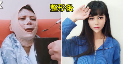 影/「白癡公主」整形了!公開「8小時手術過程」讓網友震驚 她:想了3年