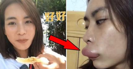 網紅直播「吃蜂巢」被蜜蜂圍攻 變「火辣香腸嘴」當場哭爆!