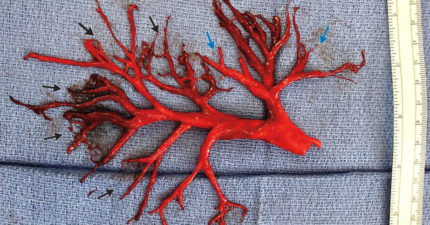 咳嗽時噴出「紅色植物」?醫生傻眼:形狀很完整