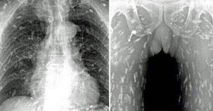 男子吃太多生魚片去照X光片,「快要不是人類」他再也不敢吃了!