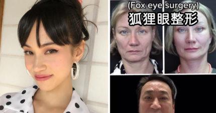 老外流行整形變「狐狸眼」 亞洲網友超不爽:是歧視