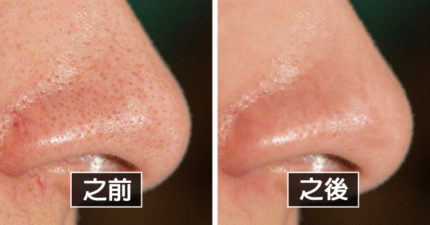 皮膚醫生分享10個「水煮蛋肌膚」的超簡單方法 「喝牛奶」真的會害慘你